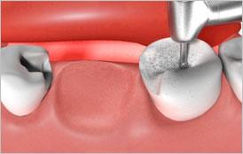 Implantate - künstliche Wurzeln
